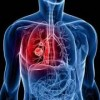 Lung Cancer Breakthrough: New blood test detects cancer