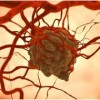 Scientists discover way to potentially slow down cancer spread