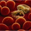 New drug treatment against non-severe malaria cases found to be effective
