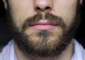 home remedies to grow facial hair