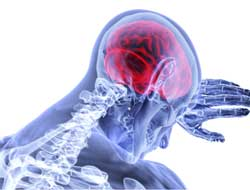 UK trial results may banish stroke disability