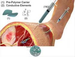 Neuromodulation therapy made easier with injectable electrodes