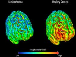 Breakthrough UK study finds lack of key brain protein affects schizophrenia
