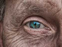 Wrinkles and spots allow new diagnostic AI to estimate peoples' ages