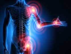 Radio waves used to slow pain transmission in arthritis