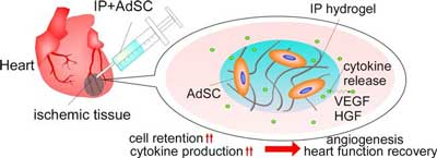 Stem-cell hydrogel injection studied for heart attack patients