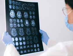 Swedish scientists discover aggressive, early onset Alzheimer's in 40-year-olds